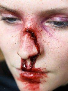 разбитый носа