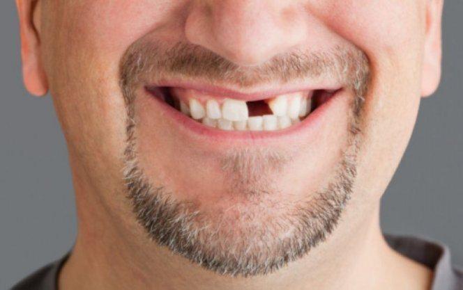 Если выпал передний зуб к чему снится