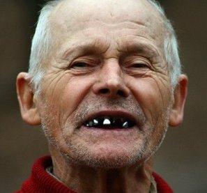беззубый рот
