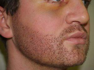 Сонник волосы на лице у женщины