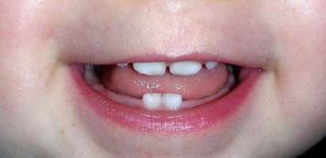 Фото Видеть во сне растущий зуб