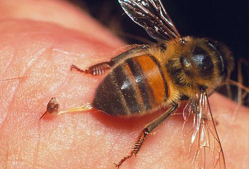 Фото как пчела жалит