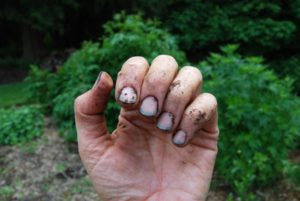 Грязные и неухоженные руки