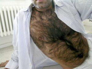 Сонник. волосы на груди
