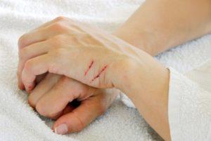 Повреждения