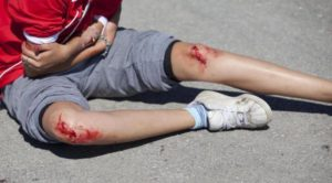 Повреждение на ногах