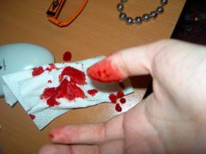 Капает кровь