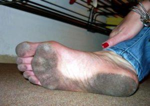 Испачканные ступни
