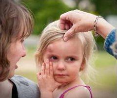 Ушиб у ребенка