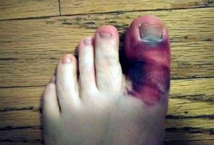 Травмированы ноги