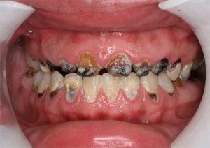 Больные челюсти