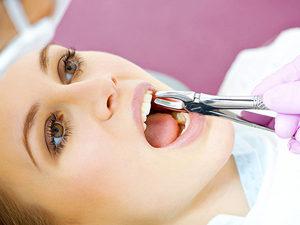 Удаление в стоматологии