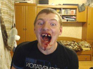 Пострадавшая челюсть
