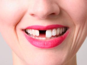 Пострадавшие челюсти