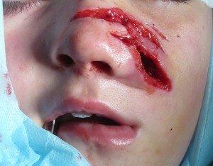 Раненое лицо