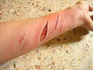 Раненая рука
