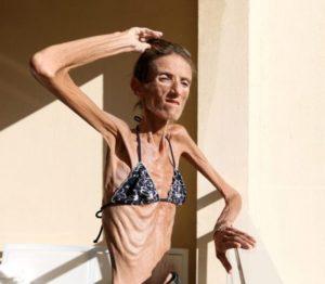 Старое исхудавшее тело