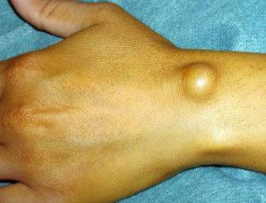 Патологическое формирование на руке