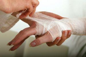 Обожженный палец