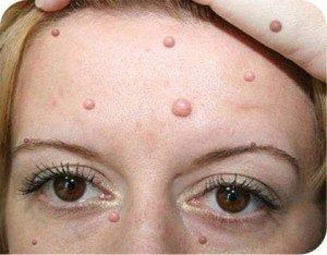 Дефекты на лице