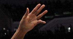Перебитый палец