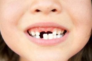 Зубы выпадают